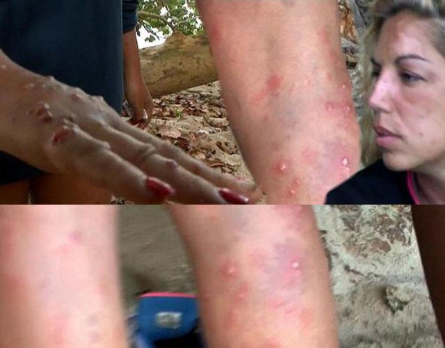 Supervivientes evacuados mosquitos